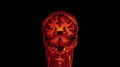 MRI brain scan on Vimeo